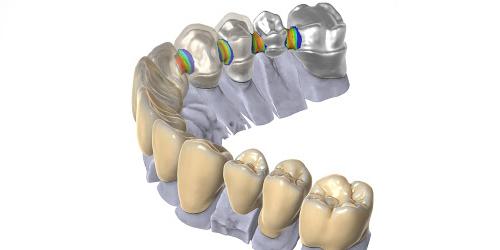 _Dental_Prosthesis