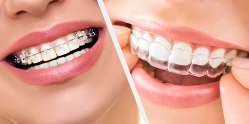 Nowadays, an attractive smile is the key of success. Perfect smile determined not only by beautiful teeth, but also by the correct bite. We use bracket systems from various materials - metal, ceramic, sapphire, gold - both external and internal, lingual, aligners (transparent activator – mouthguard form) Invisalign.