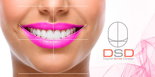 Applying of Digital Smile Design (DSD) concept allows our customer to evaluate a virtual result in advance, shortly before the start of the procedures.